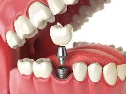 Vinayakam Dental Clinic